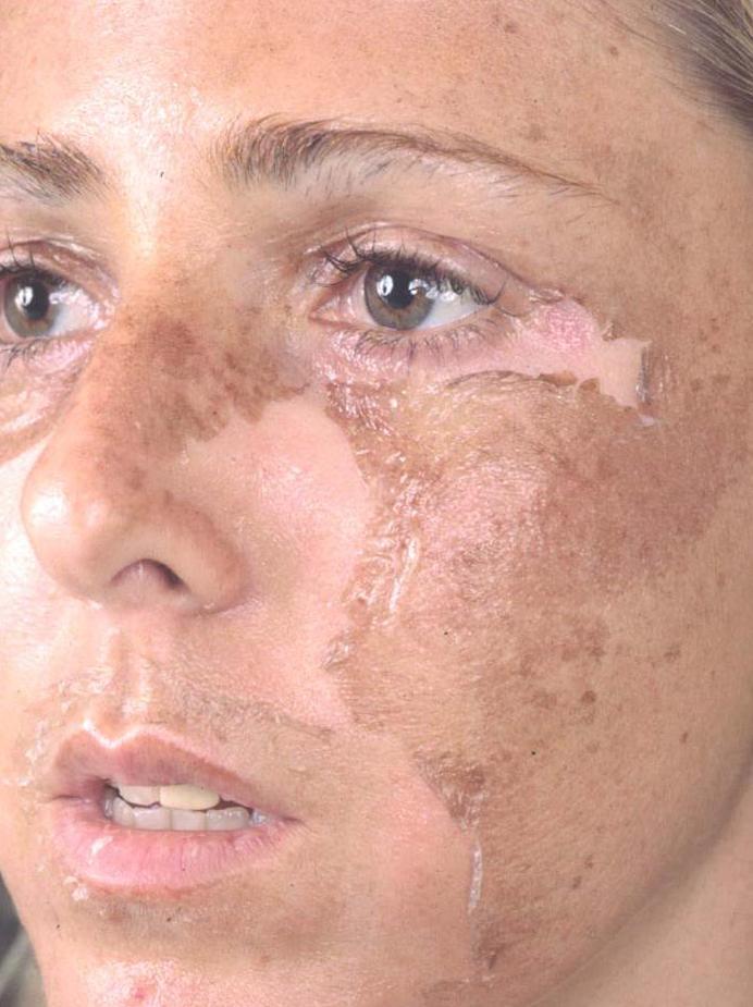 От Прыщей Garnier Skin Naturals